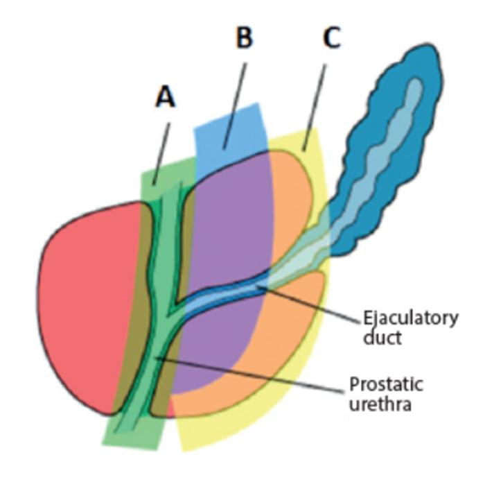 Bladder outlet obstruction | Urology News